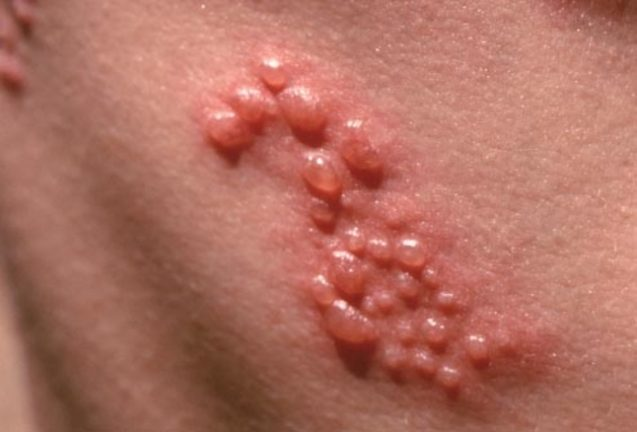 Shingles / Postherpetic Neuralgia